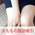 太ももの脂肪吸引をする女性の足のイメージ画像