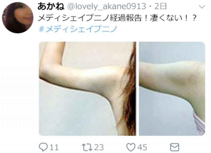 メディシェイプニノで二の腕痩せに成功した女性の画像