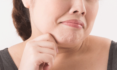 肥満による二重あごの女性の画像