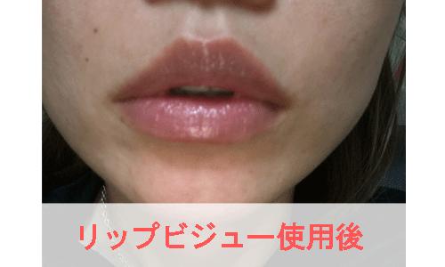 リップビジュー使用後の女性の唇の写真