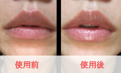 リップビジュー使用前と使用後を比較した女性の唇の写真