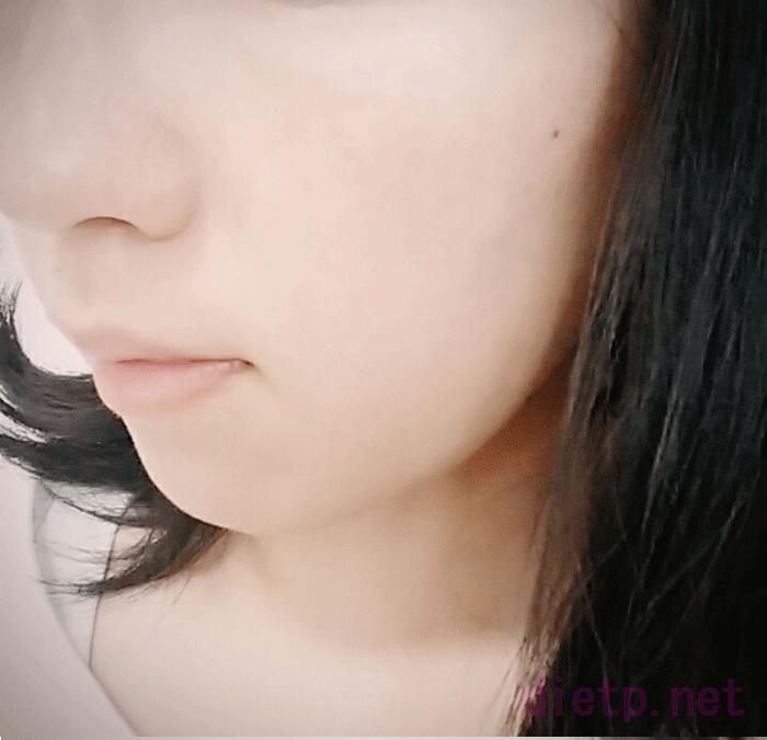 ピューローションオメガを使用してみた女性の顔の写真