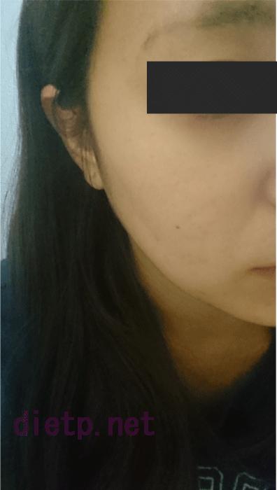 リプロスキンを使用する前の女性の顔写真