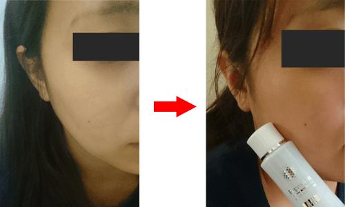 リプロスキン使用前と使用後の比較写真