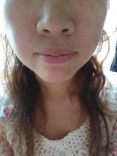ホワイトロジーの美白体験3点セットを使用する前の女性の写真